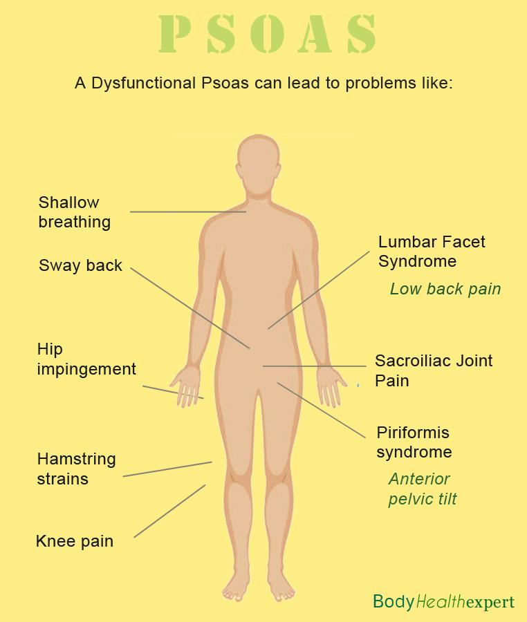 psoas problems